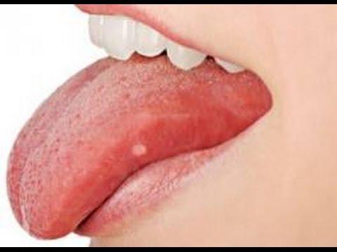 a nyelv megtisztítása a rossz lehelettől)