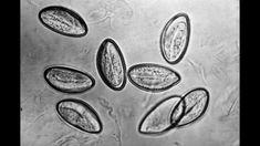 Enterobiasis az óvodában