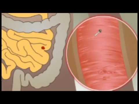 paraziták a történelem emberében ascaris férgek pinworms