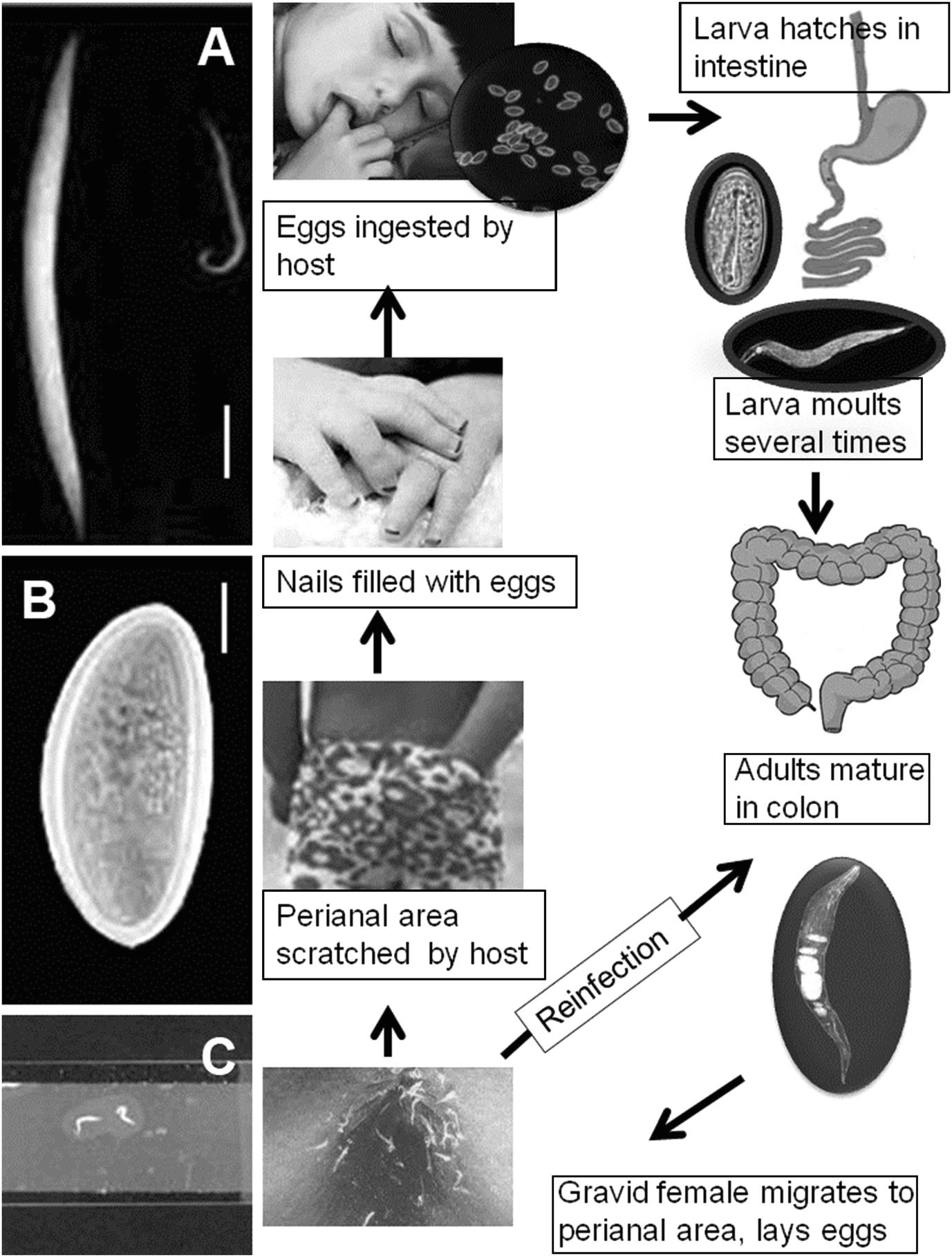 ascariasis és enterobiasis)