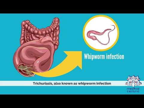 trichocephalosis tünetei emberekben