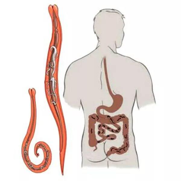 paraziták az epehólyag tüneteinek diagnózisában)