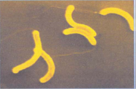 saprotrofák paraziták Vibrio cholerae)