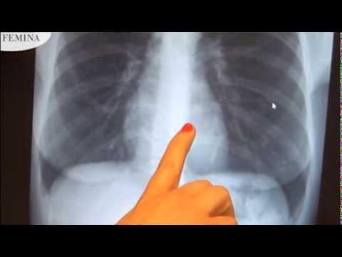 hogyan kell kezelni a kerekférgeket a tüdőben