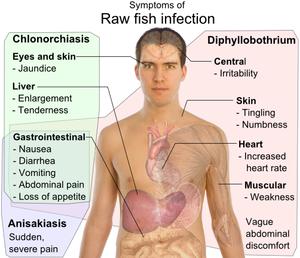 A diphyllobothriasis jellemző - Diphyllobothrium latum infestatio
