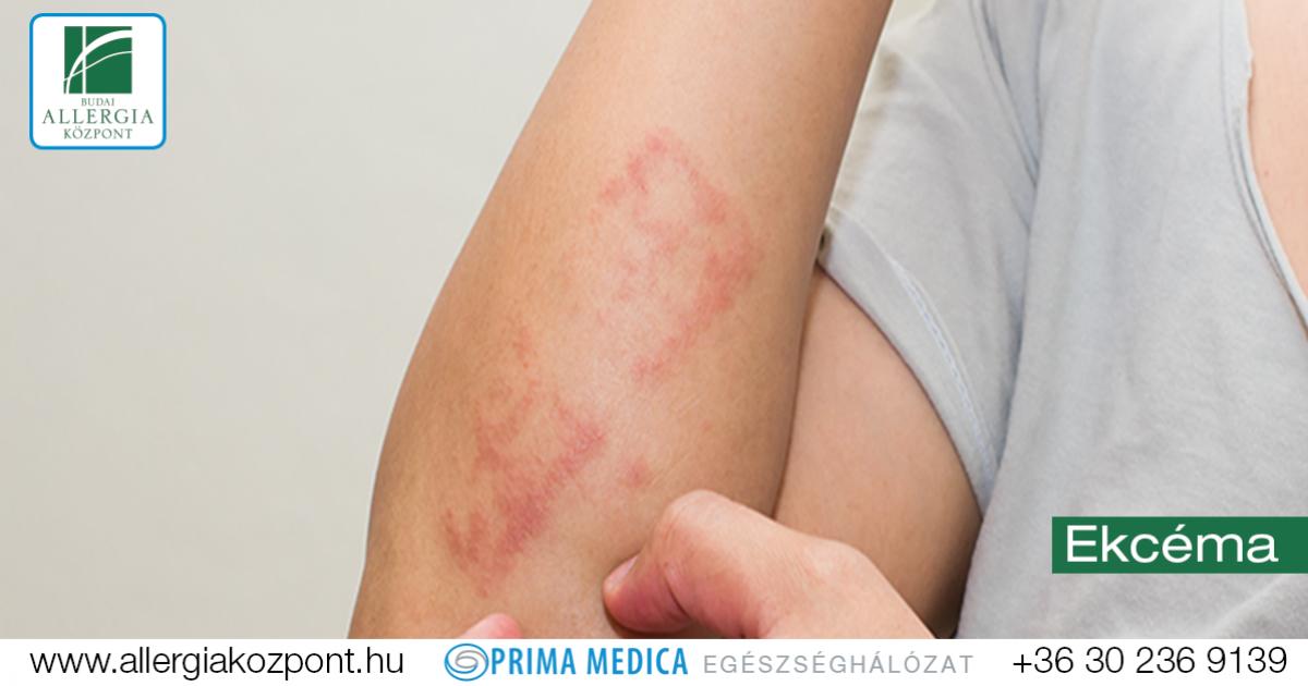 mely parazita okozza az atópiás dermatitist
