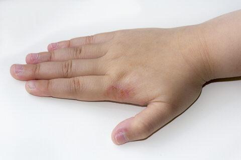 mely parazita okozza az atópiás dermatitist)