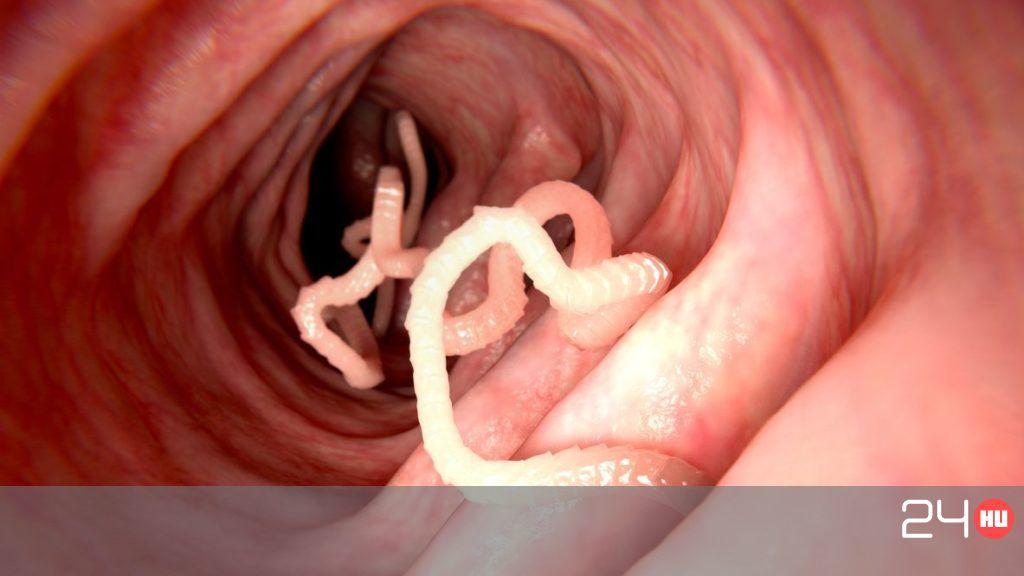 a rossz lehelet íze a szájban okozza parazita gyógyszer paraziták ellen
