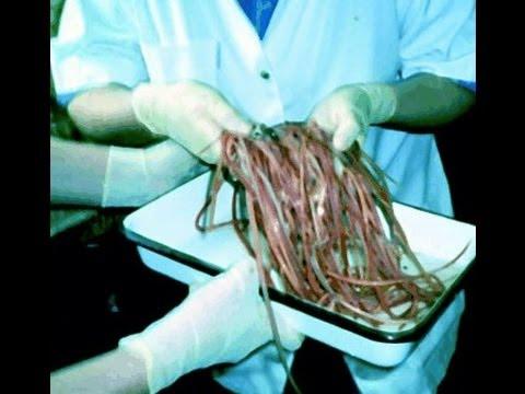 pinworms fogantatáskor