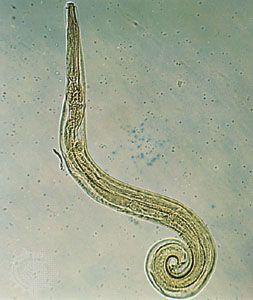 körömféreg típusú emberi körömféreg Az Ascaris érintett szerveket